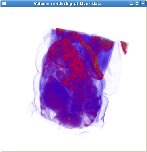 Screenshot-Volume rendering of Liver data